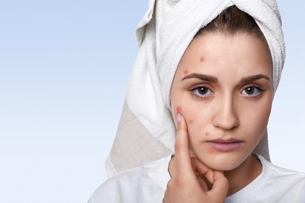 Flower Mound Acne Treatment